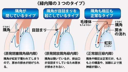 緑内障の3つのタイプ